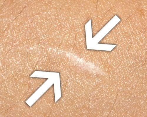Los mejores remedios naturales para cicatrizar heridas