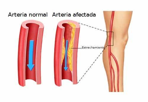 Remedios herbales para la arteriosclerosis