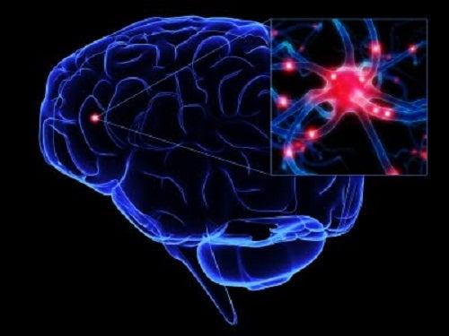5 tips para prevenir posibles demencias