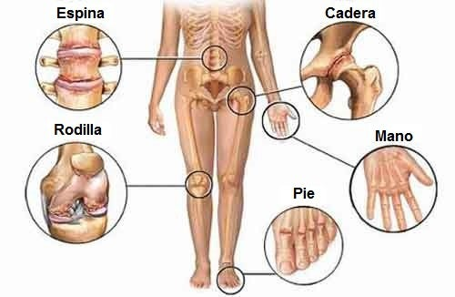 Consejos para aliviar el dolor articular
