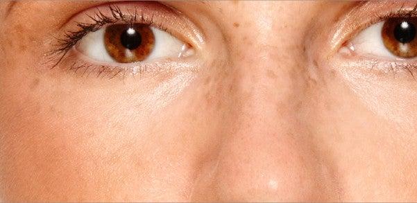 Cómo atenuar o eliminar las manchas en la cara