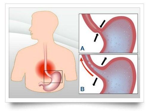 Reflujo gástrico: 8 tips para afrontarlo