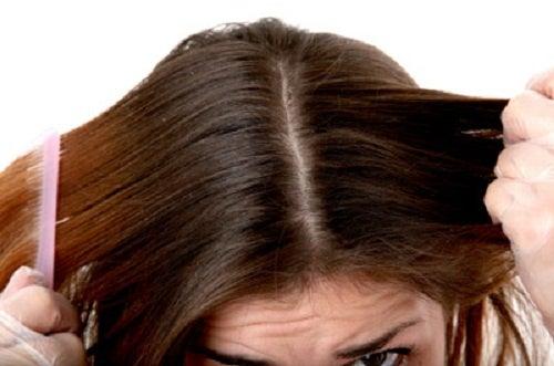 Neutraliza el pH natural del cabello y ayuda a combatir la caspa