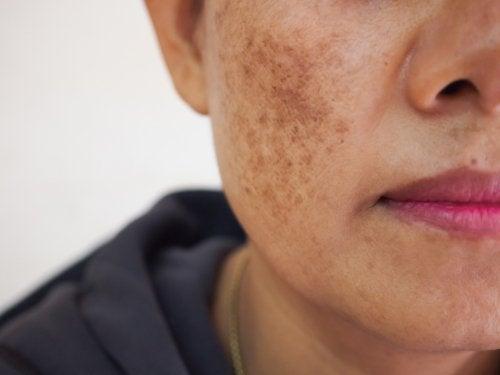 Consideraciones al querer eliminar las manchas de la piel