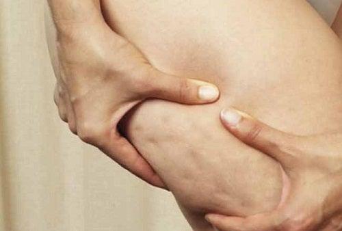 7 alimentos que aumentan o provocan celulitis