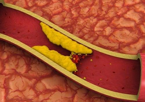 8 infusiones para ayudarte a regular el colesterol