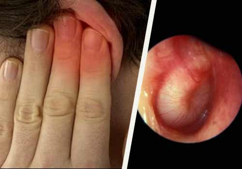 Mucho ruido es perjudicial: la pérdida auditiva