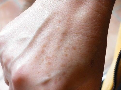 La formación en la piel de las manchas negras