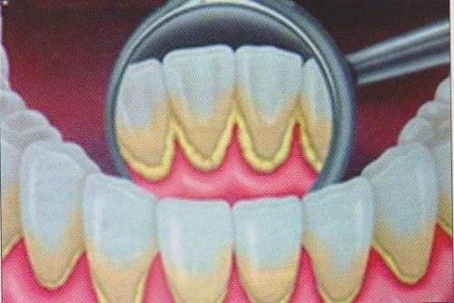 como quitar sarro negro en los dientes