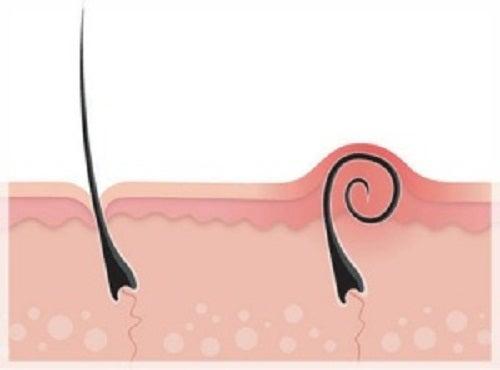 Vello enquistado tras la depilación: ¿Cómo tratarlo?