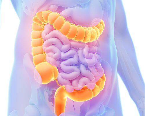 Problemas de colon.