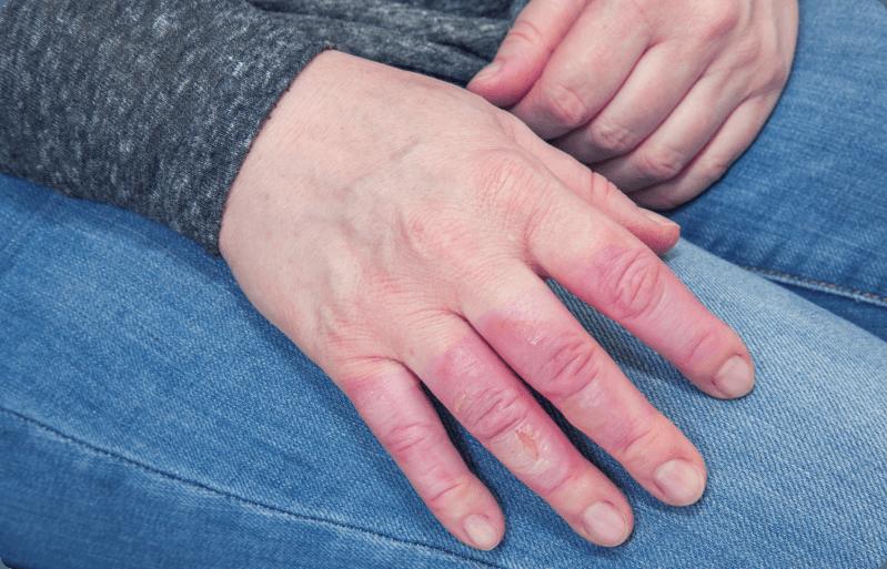 Dedos hinchados