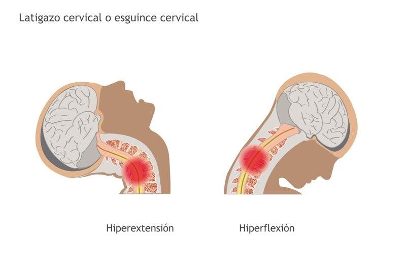 latigazo cervical: síntomas
