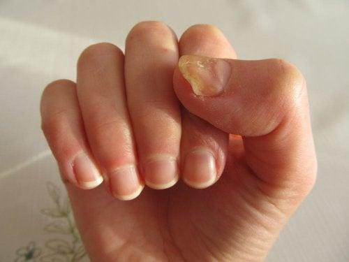 Tratamiento de las principales enfermedades de las uñas