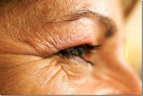 Hábitos que provocarían arrugas prematuras
