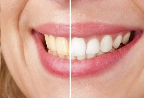 5 ideas naturales para blanquear los dientes