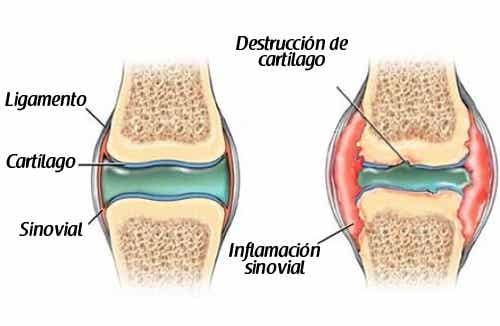 ¿Es posible prevenir el dolor de cartílagos?
