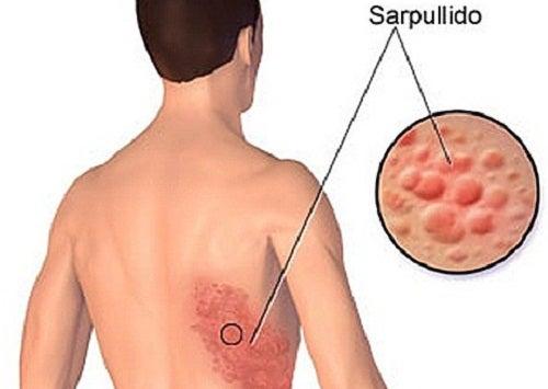 Cómo tratar naturalmente la culebrilla o herpes zóster