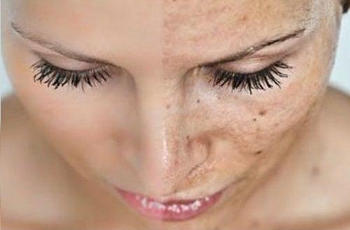 Envejecimiento prematuro de la piel