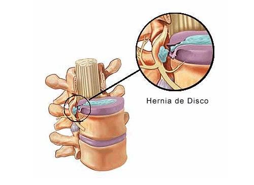 Cómo prevenir y tratar la hernia discal