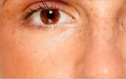 Manchas en la piel, una de las 10 partes del cuerpo que se ven afectadas por el estrés