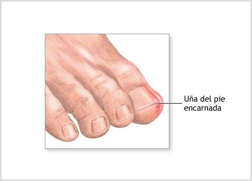 Cómo cortar las uñas y prevenir que se nos encarnen
