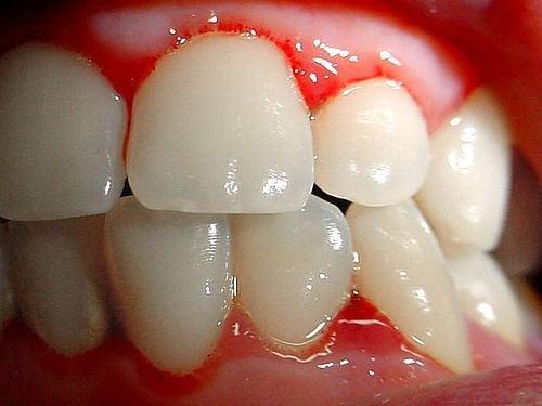 Cómo tratar las encías sangrantes