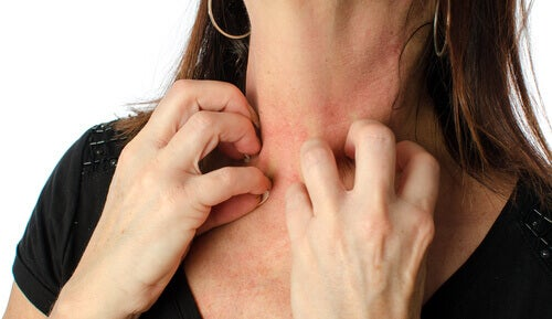 Mujer rascándose el cuello por sarpullido en la piel.