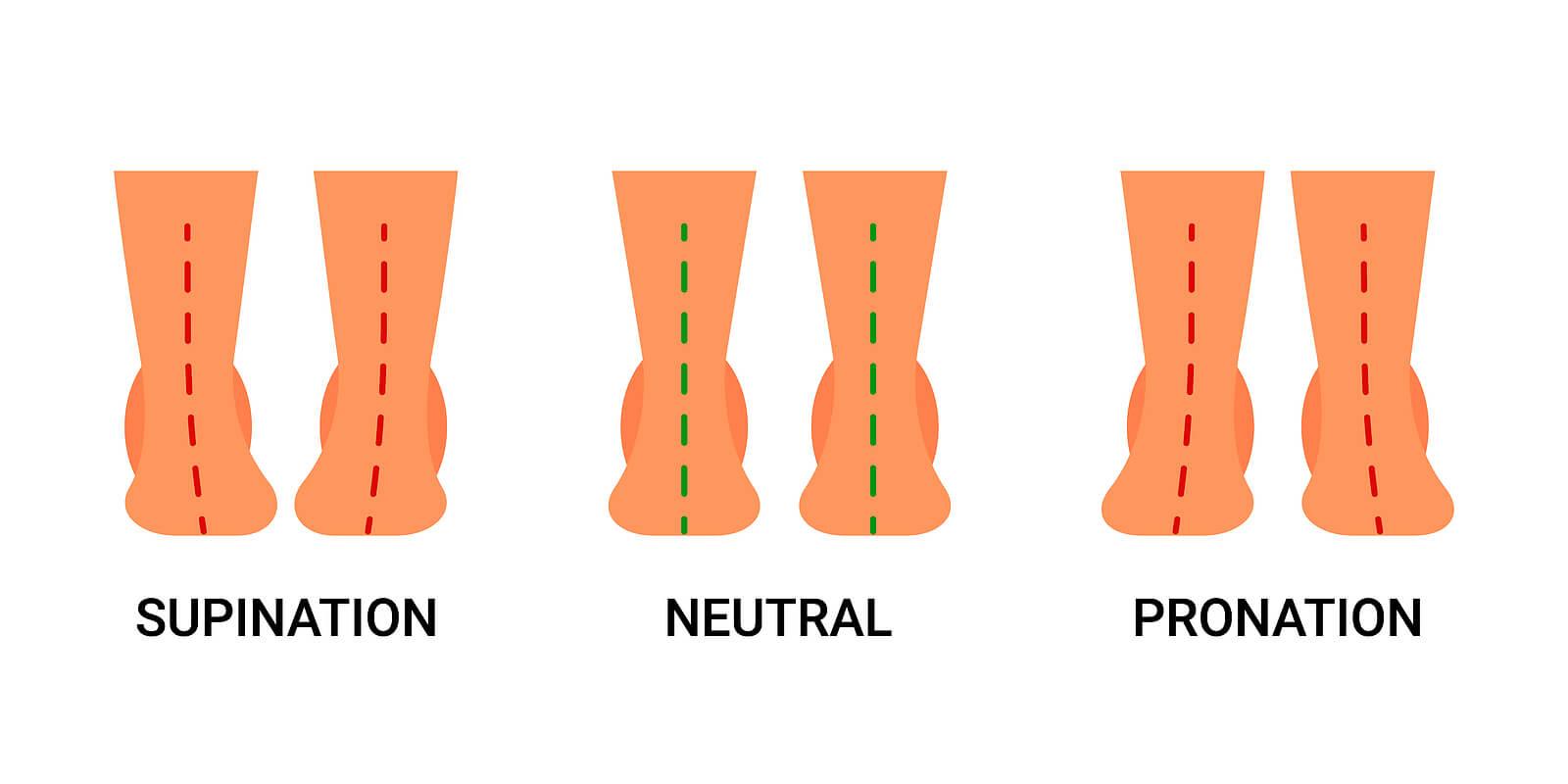 Supinación y pronación son anomalías de la pisada.