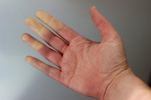 Pierna entumecimiento mano la brazo y en derecho y hormigueo del