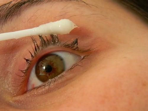El acné la loción del doctor tayssa