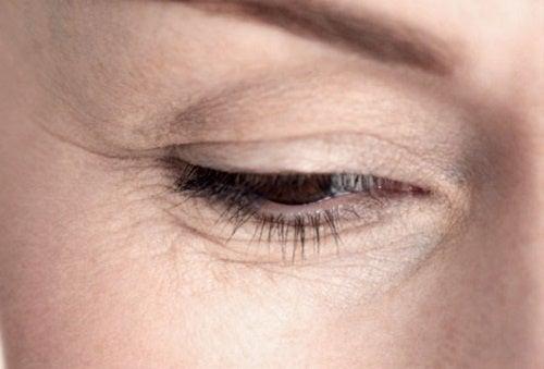 Ojos con arrugas por envejecimiento prematuro