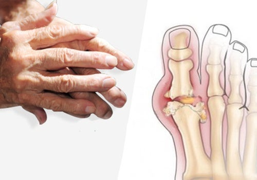 artritis perdida de peso