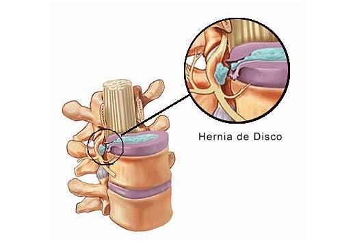 La hernia discal aparece por la presión en los discos