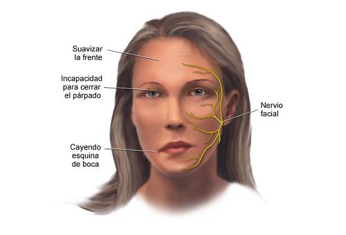 Cómo prevenir y tratar la parálisis facial