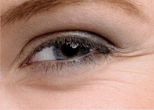 Remedios para bolsas en los ojos y patas de gallo