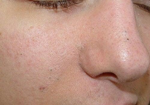 La alergia o el acné a los recién nacidos sobre la persona