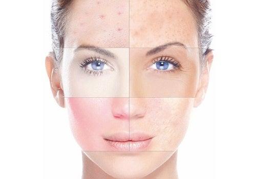 Resultado de imagen de piel grasa