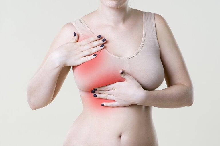 Enfermedad de Paget mamaria: ¿en qué consiste?
