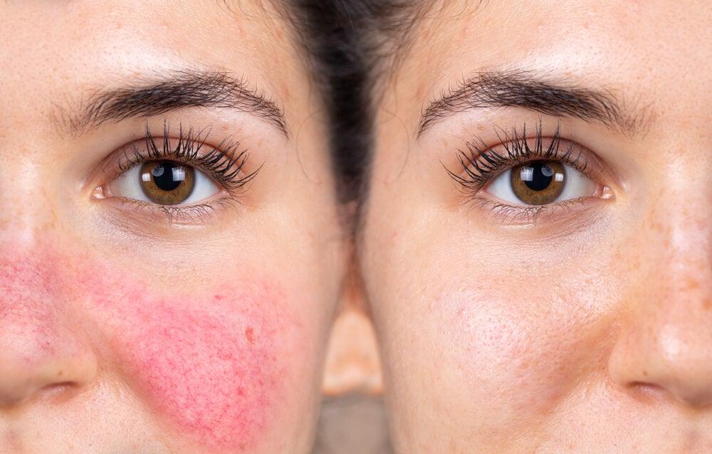 Síntomas del enrojecimiento facial