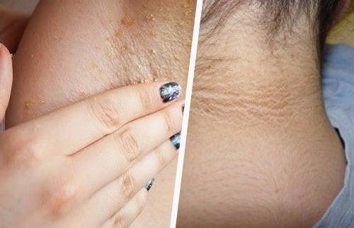 síntomas de diabetes enfermedad del cuello sucio