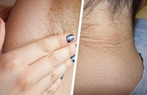 La crema para el blanqueamiento de la piel de las zonas íntimas