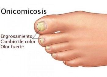 Onicomicosis Cuando Los Hongos Están En Las Uñas Mejor Con Salud