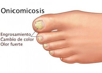 Onicomicosis: cuando los hongos están en las uñas