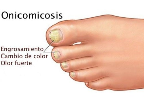 Las uñas en los pies se alejan a la piel que curar