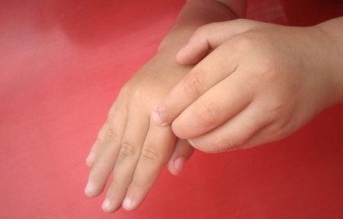 Picazón insistente en los dedos. ¿A que se debe?