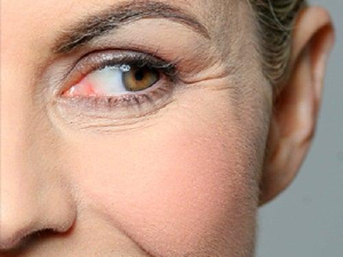 Beber agua caliente previene arrugas prematuras