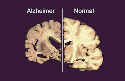 Cerebro-con-alzheimer-y-sano