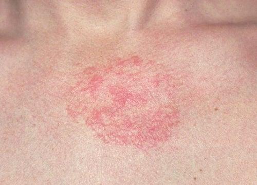 Atopichesky la dermatitis de la foto a los niños de la causa