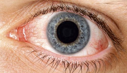 Remedios naturales para la resequedad de los ojos